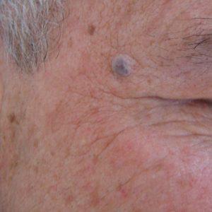 Blutschwamm vor Laserung